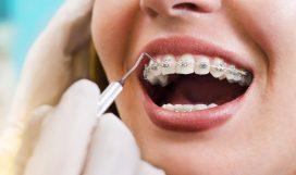 Ortodontiya-kartinka-na-sajt